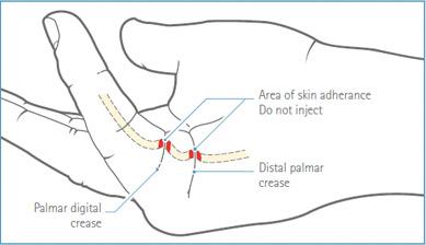 Fig.5 Selezione del sito di iniezione – aderenza della cute alla corda nella contrattura di un'articolazione MCF