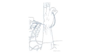 Artroscopia-di-polso