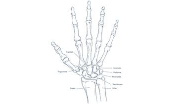 Artrosi-del-polso-Parziale
