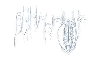 Encondroma-dottor-borelli-brescia