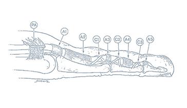 Le-lesioni-dei-tendini-flessori