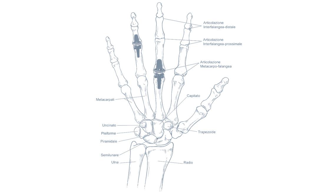 Artrosi delle articolazioni delle dita